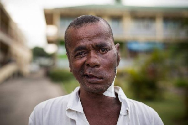 Mercy Ships Changes Life of Man Who Had a Tumour for 36 Years