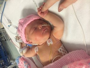 Our Baby Received Life-Saving Heart Surgery