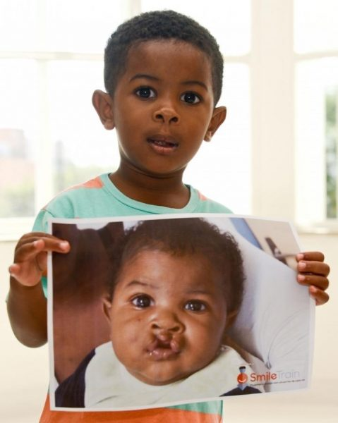 Facial Mapping to Improve Cleft Lip and Palate Surgery in Developing World