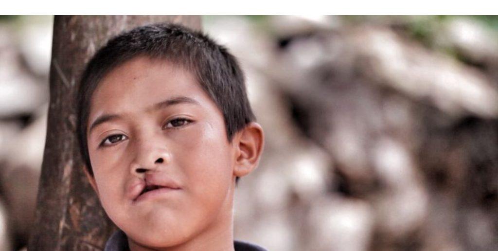 Helping Children Around the World Keep Smiling